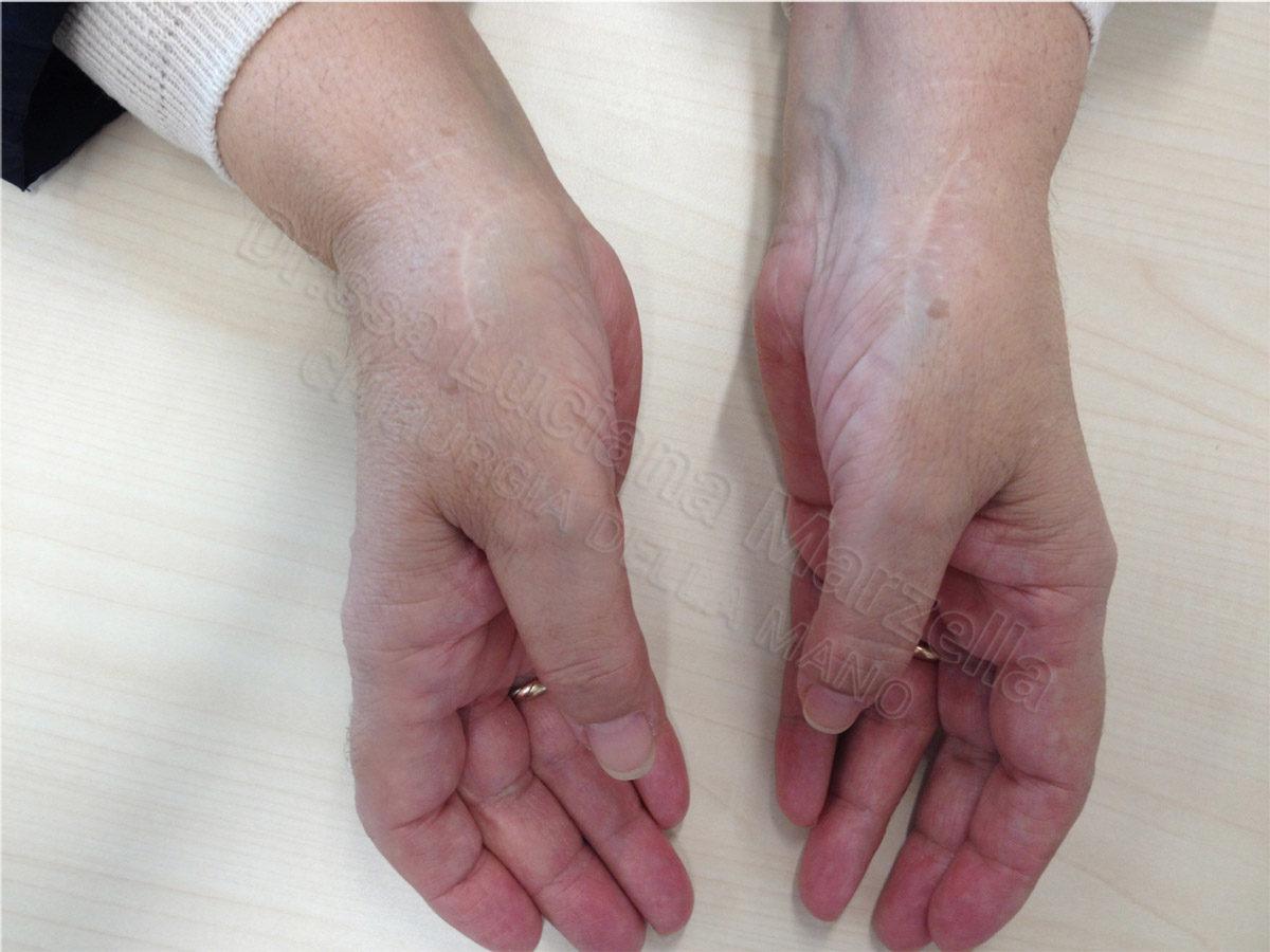 https://www.marzellachirurgiadellamano.com/wp-content/uploads/2019/06/rizartrosi4-1200x900.jpg