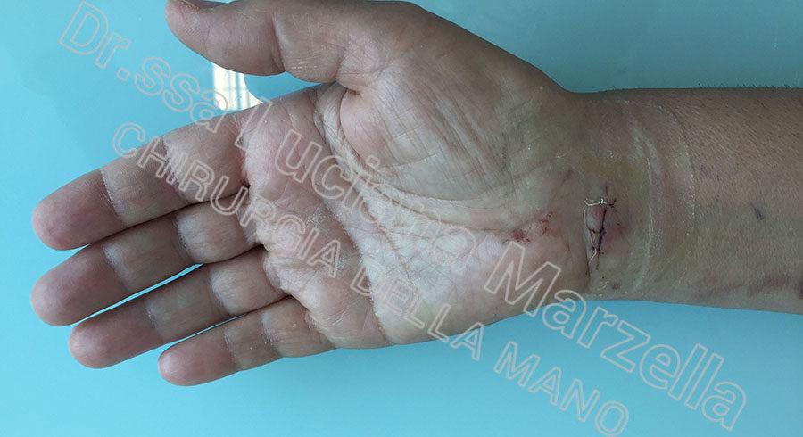 https://www.marzellachirurgiadellamano.com/wp-content/uploads/2021/03/sindrome-del-tunne-carpale_2-giorni-900x490.jpg