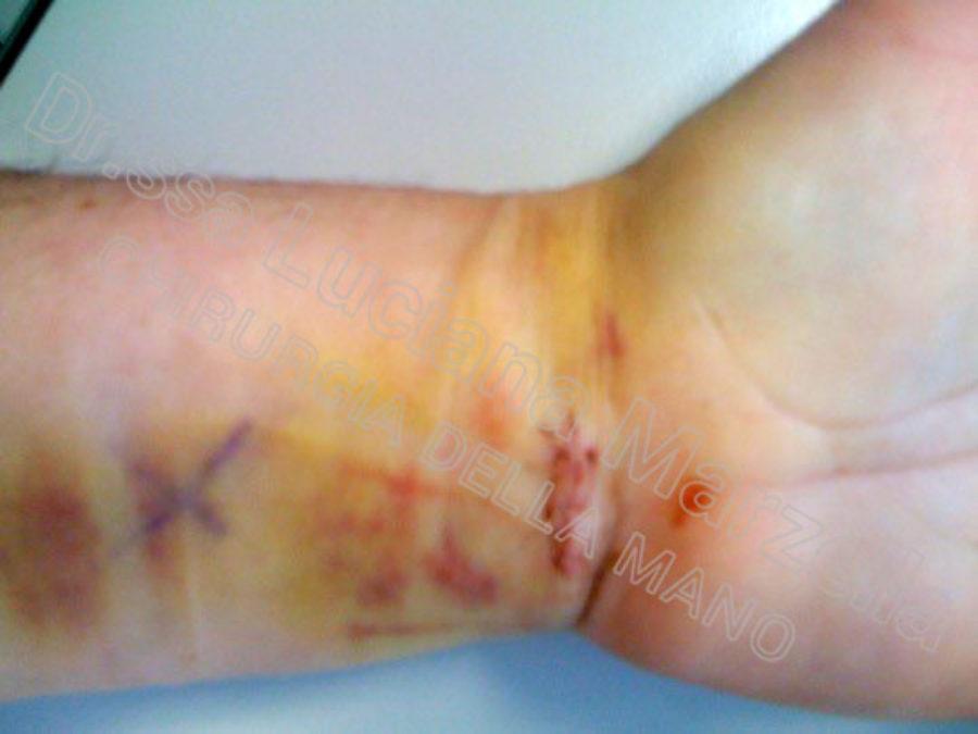 https://www.marzellachirurgiadellamano.com/wp-content/uploads/2021/03/sindrome-del-tunne-carpale_3-giorni-900x675.jpg