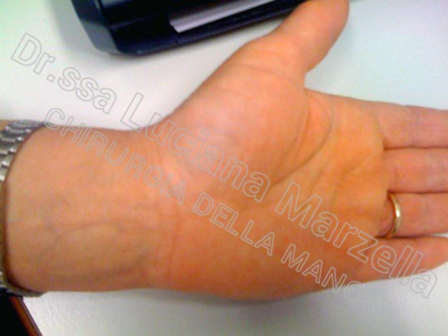 https://www.marzellachirurgiadellamano.com/wp-content/uploads/2021/03/sindrome-del-tunne-carpale_3-mesi-900x675.jpg